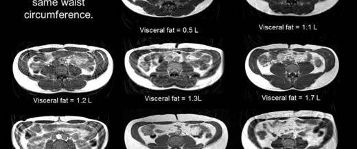 La era del síndrome metabólico: La grasa inflamatoria es peor que la obesidad